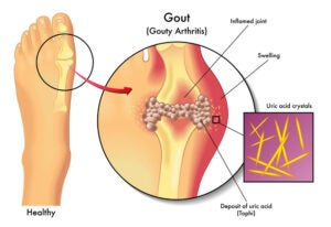 can weed cause gout